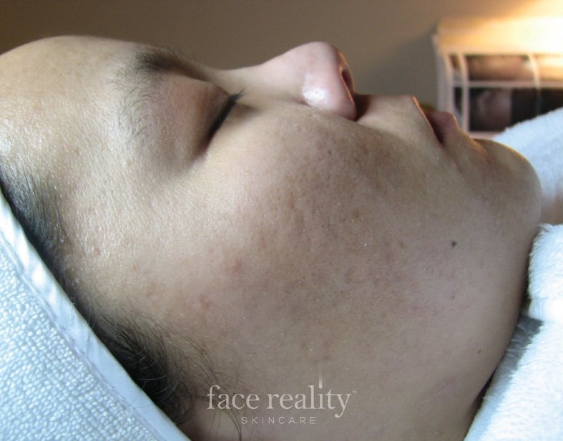 Acne Free Post Treatment