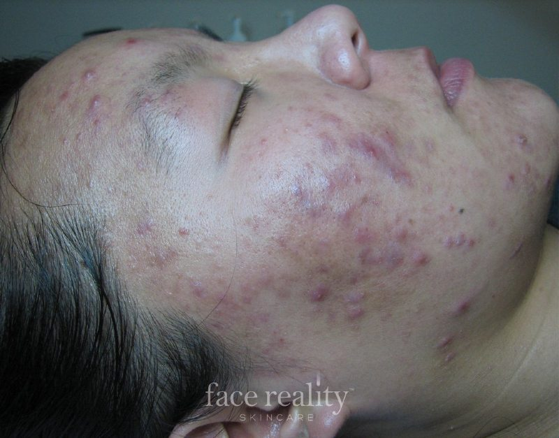 Inflamed Acne Before
