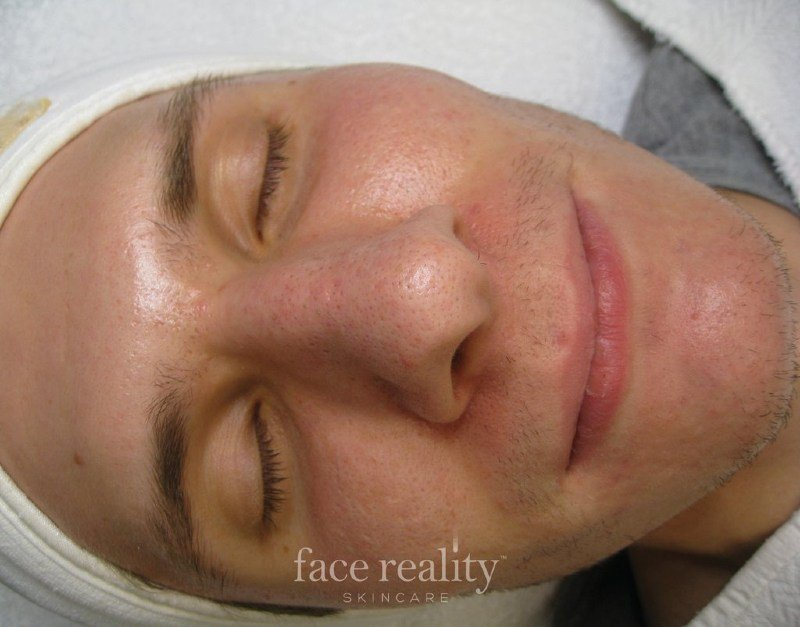 Before Acne Treatment (9)